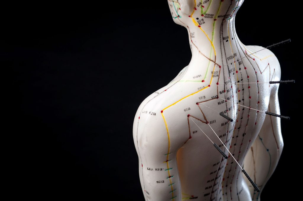 Hacienda Cristoforo Therapies - Acupuncture
